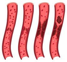 Bloedstolsel diagram op wit