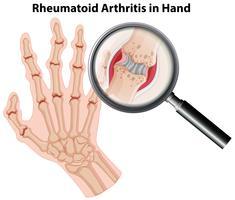 Menselijke anatomie reumatoïde artritis in de hand vector