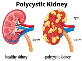 Diagram met polycystische nier vector
