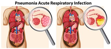 Longontsteking Acute ademhalingsinfectie vector
