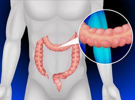 Dikke darm in het menselijk lichaam