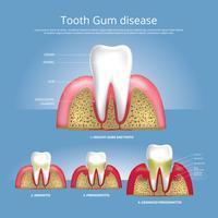 Menselijke tandstadia van de Vectorillustratie van de Tandvleesziekte