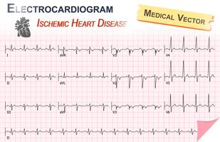 Elektrocardiogram (ECG, EKG) van Ischemic Heart Disease (Myocardial Infarct) en Anatomy of heart icon vector