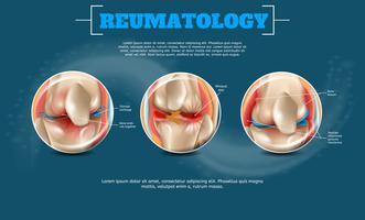 Realistische banner illustratie reumatologie vector