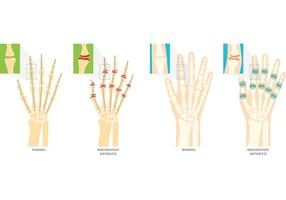 Reumatoïde Artritis Vector Symbolen