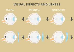 Vector visuele defecten en lenzen