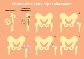 Osteoporose en Heup Vervanging Vector Info