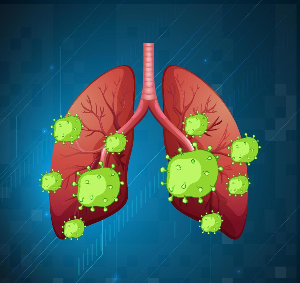 menschliche Lunge mit Covid-19-Zellen vektor