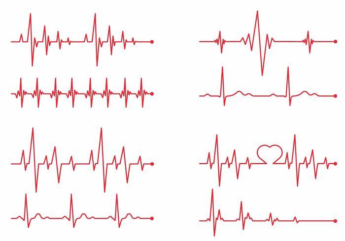 Herz-Monitor Vektor-Set vektor