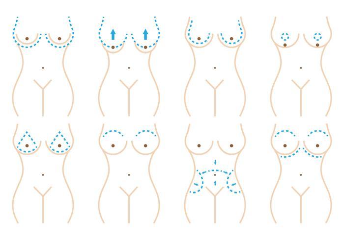 Bröstkirurgi vektor
