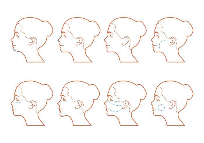 Ansiktsoperation vektor