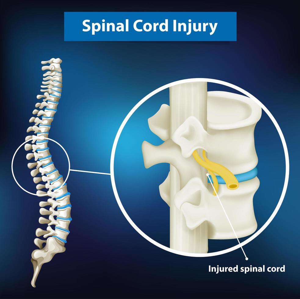 diagram som visar ryggmärgsskada vektor