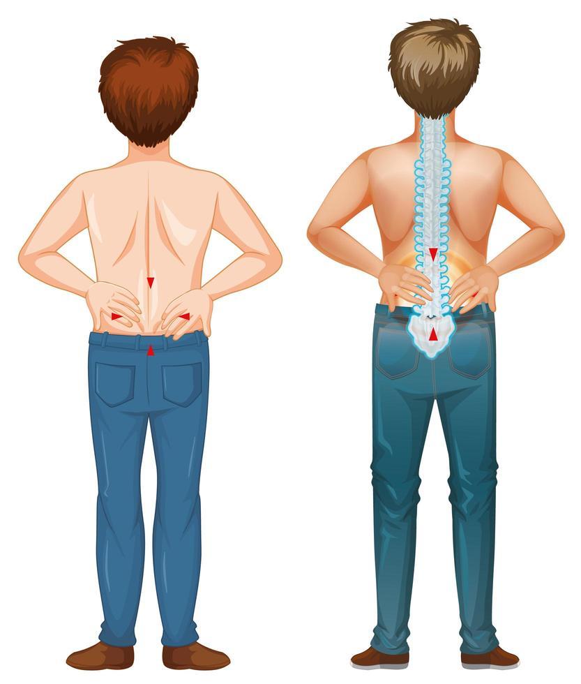 män visar smärta i ryggen vektor