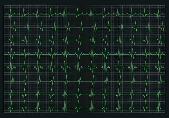 Herzpuls Grafik vektor