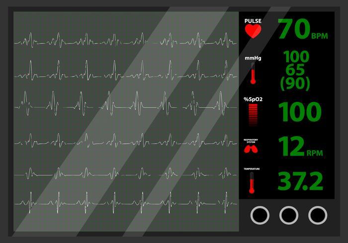 Heart Beat-Monitor vektor