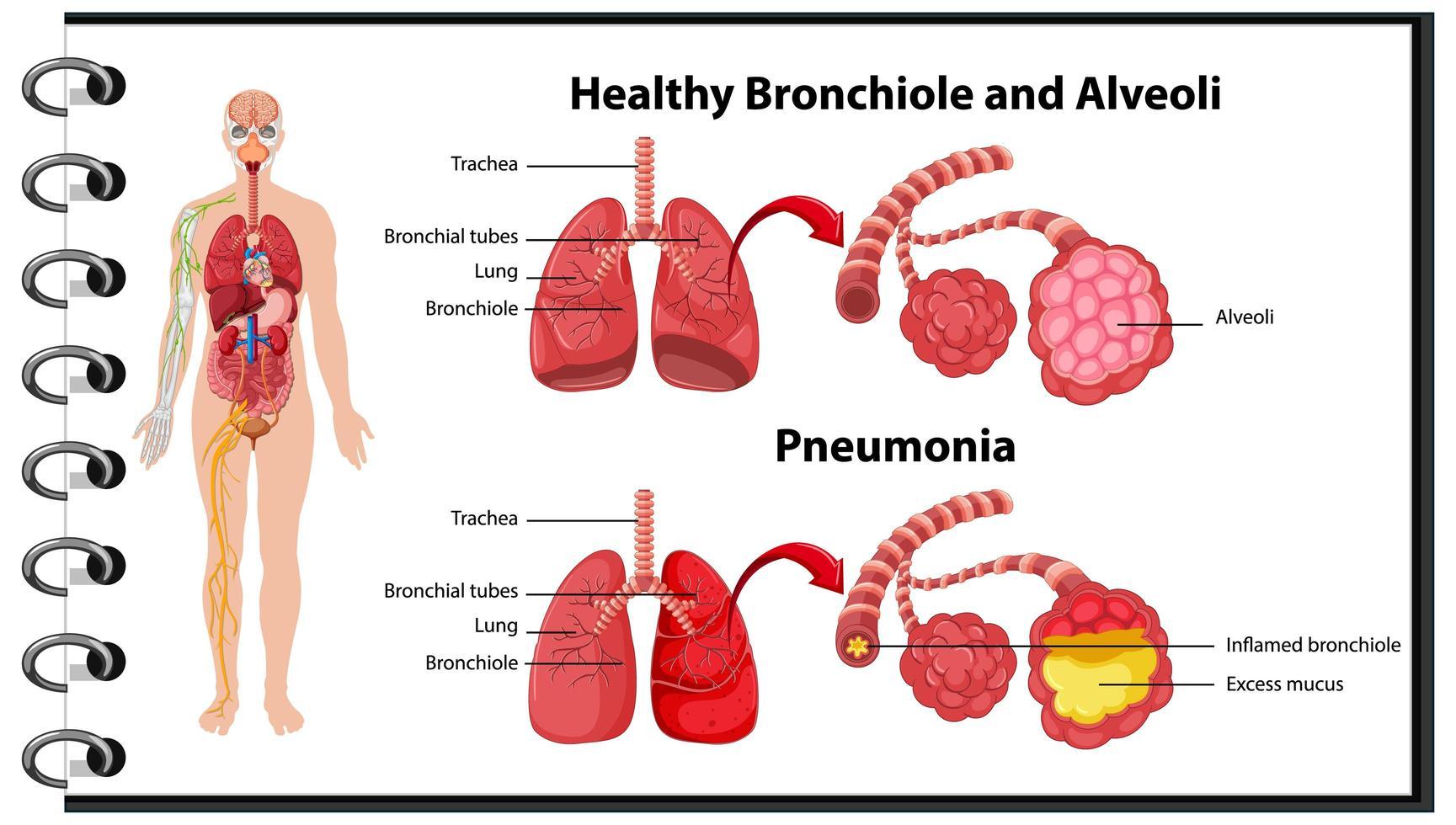 gesunde und ungesunde menschliche Lunge vektor