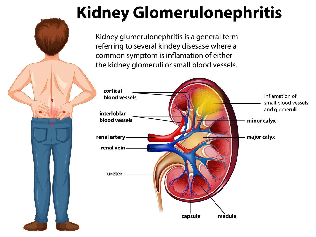 Medizinische Infografik zum Thema Nierenglomerulosklerose vektor
