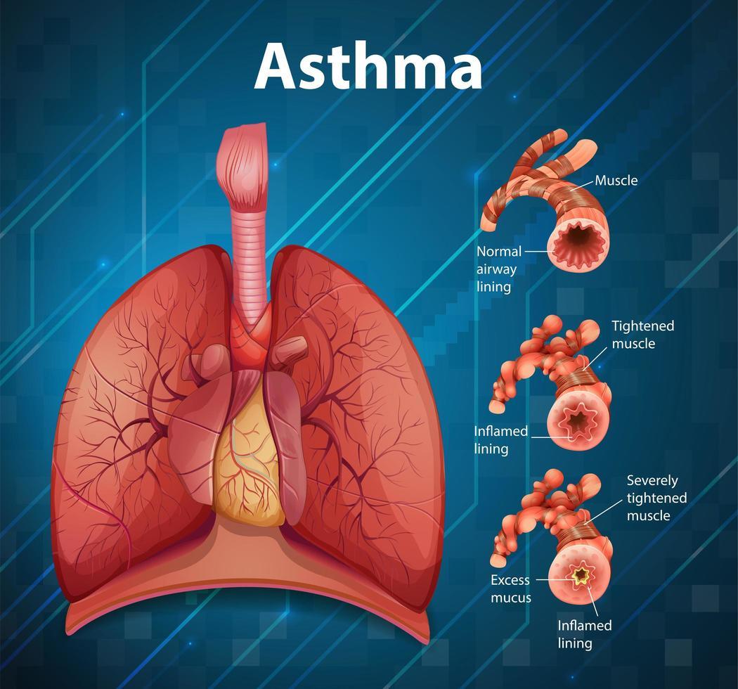 Vergleich von gesundem Lungen- und asthmatischem Lungendiagramm vektor