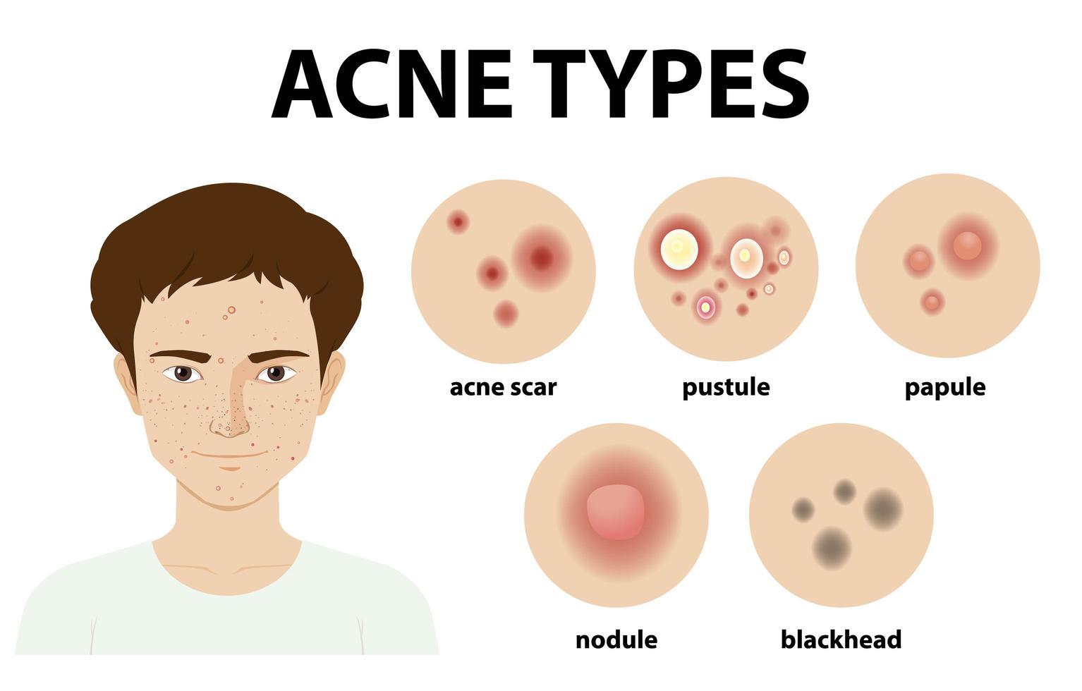 typer av akne på huden eller finnar vektor