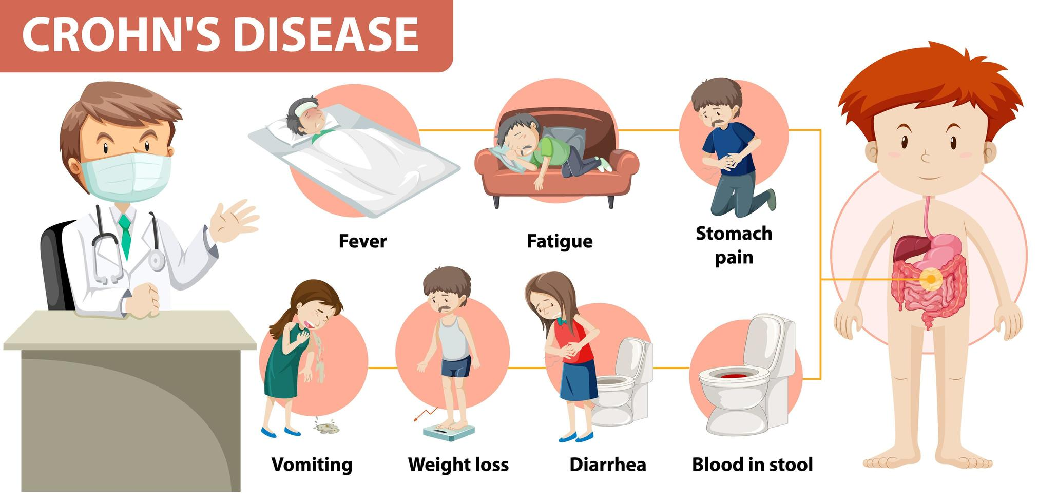 medicinsk infografik över Crohns sjukdom vektor