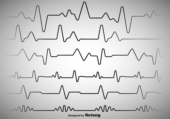 Vektor illustration Hjärtrytm Ekg Vector
