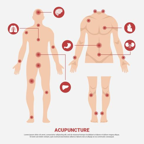 Akupunktur punkt i människokropp vektor illustration