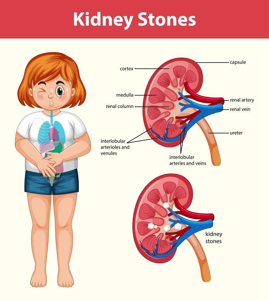 Infografik mit menschlichen Nierensteinen im Cartoon-Stil vektor