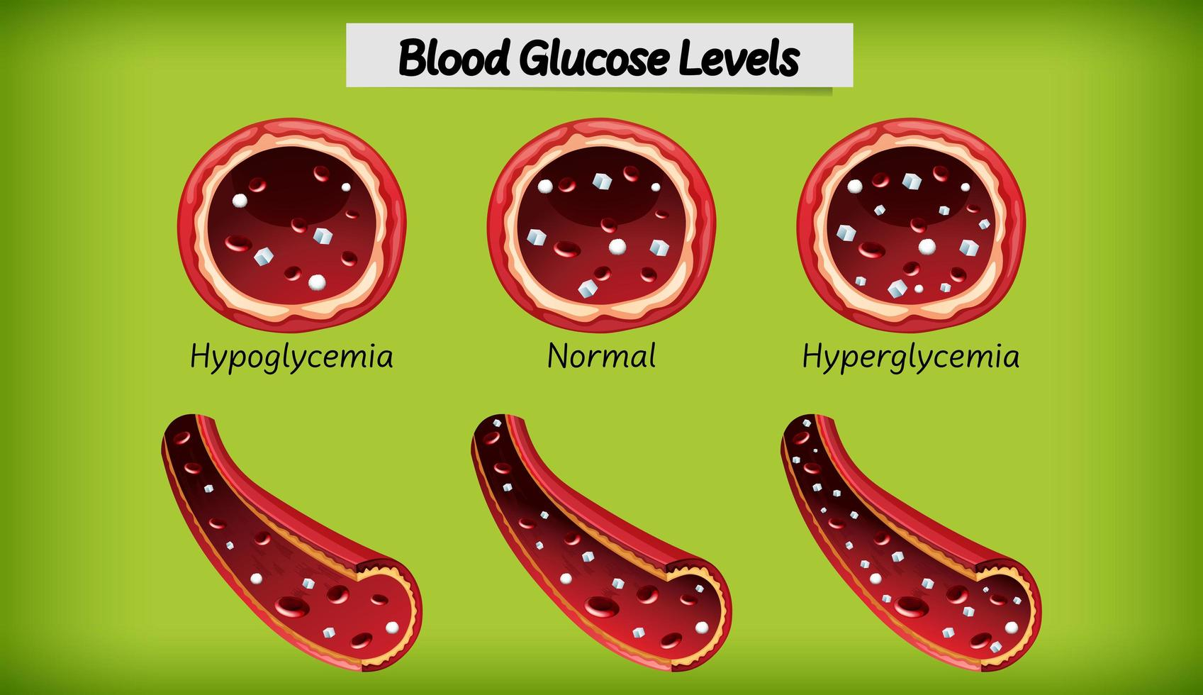 medizinischer Blutzuckerspiegel vektor