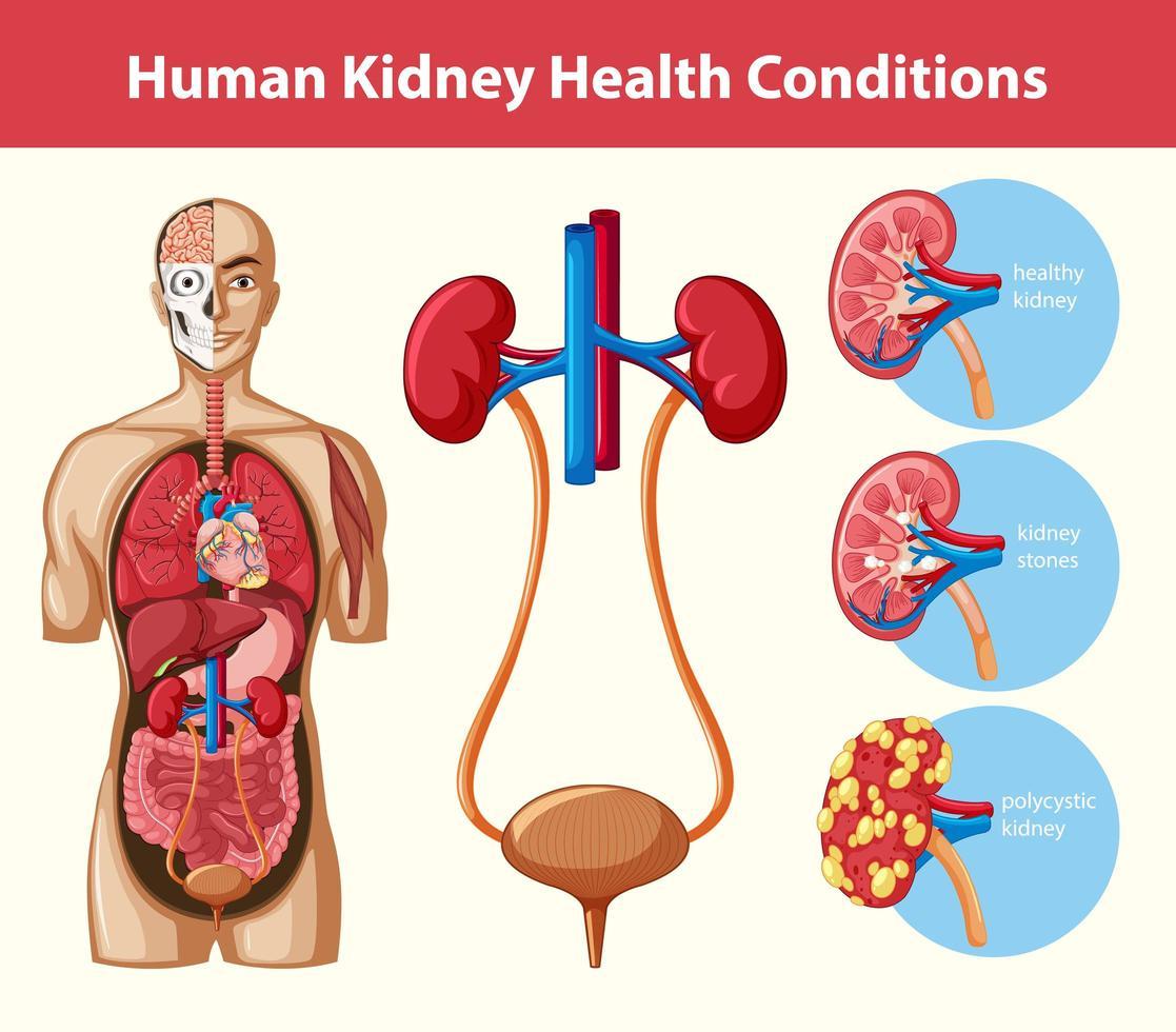mänskliga njursjukdomar infographic vektor