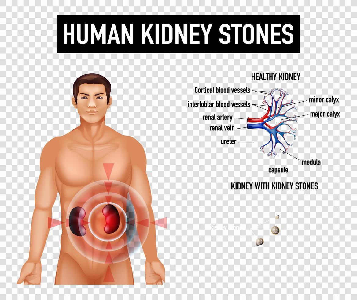 diagram som visar mänskliga njurstenar vektor
