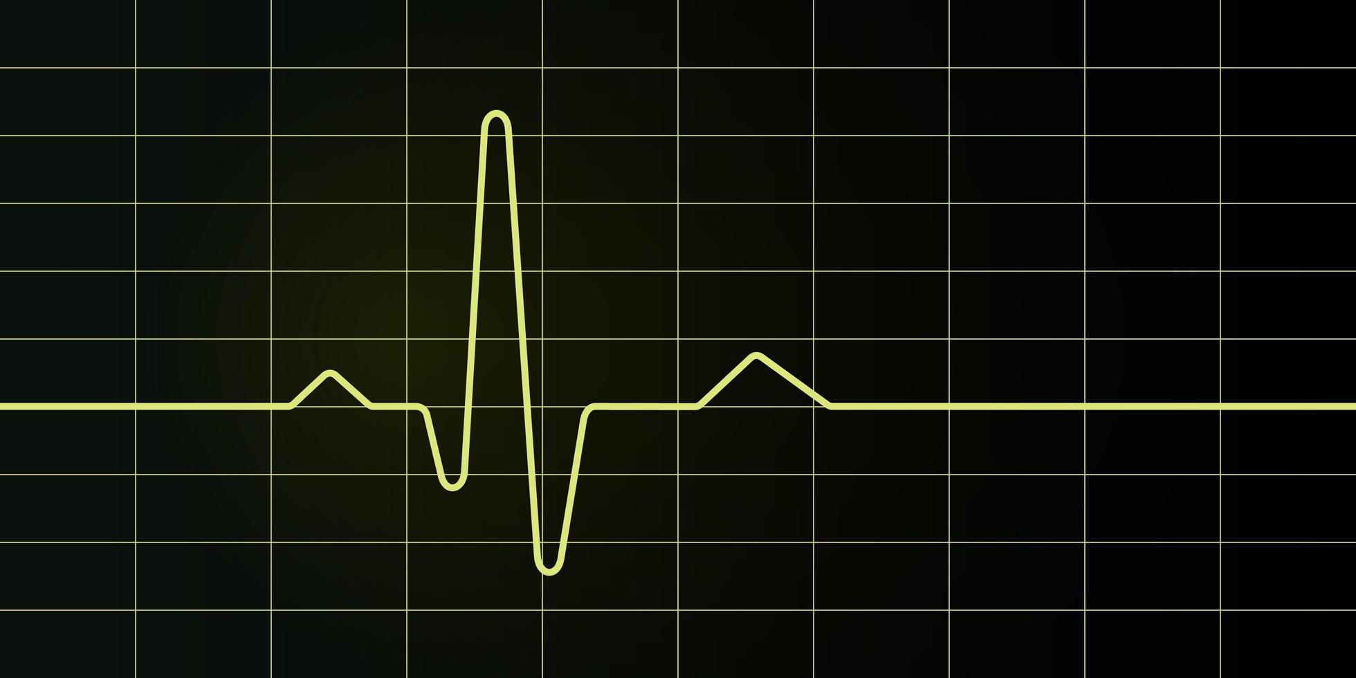 skärm och diagram för elektrokardiogram vektor