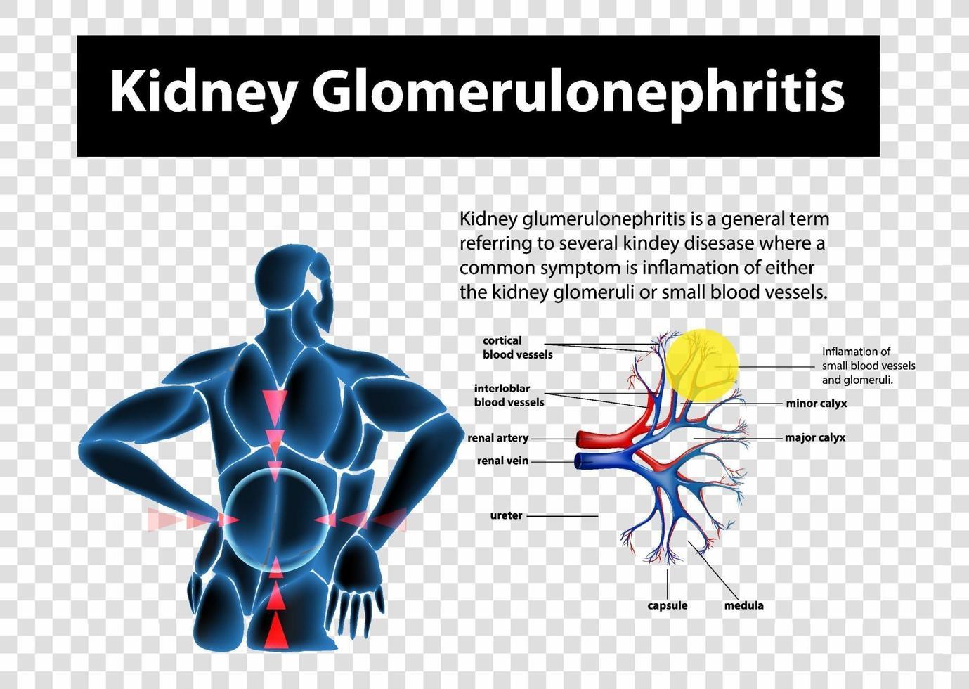 diagram som visar njure glomerulonephritis på transparent bakgrund vektor