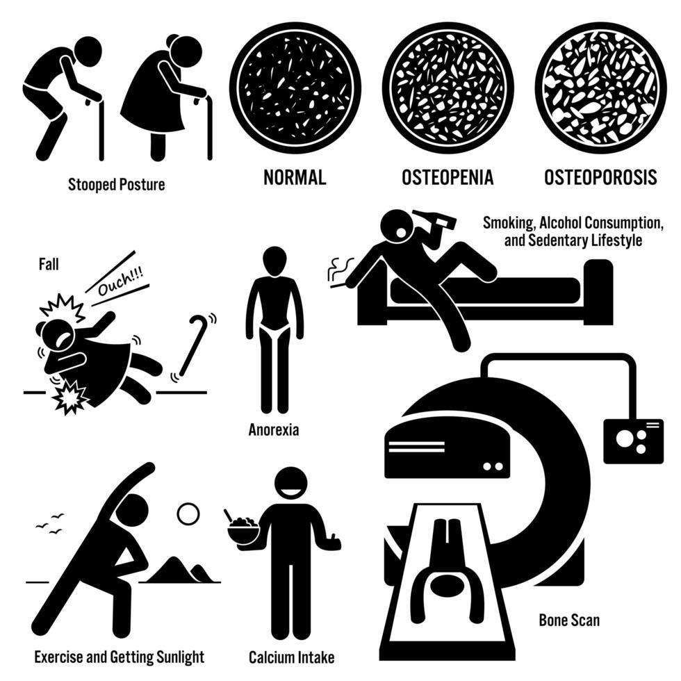 osteoporos gammal man kvinna symptom riskfaktorer förebyggande diagnos streckfigur piktogram ikoner. vektor