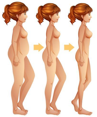 En fet kvinna som förlorar vikt vektor