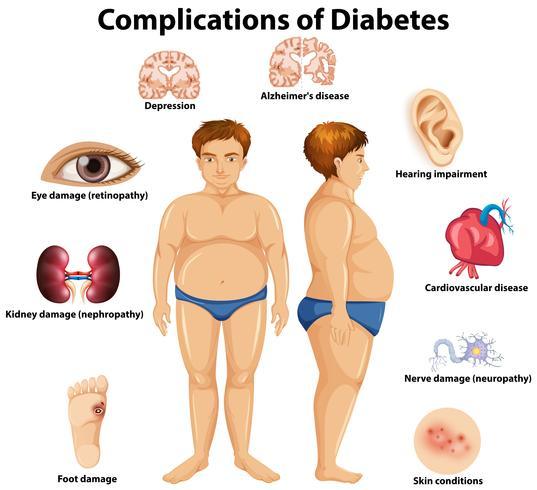 Komplikationer av Diabetes koncept vektor