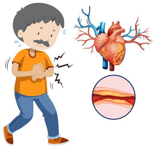 Ett mänskligt hjärtaproblem på vit bakgrund vektor