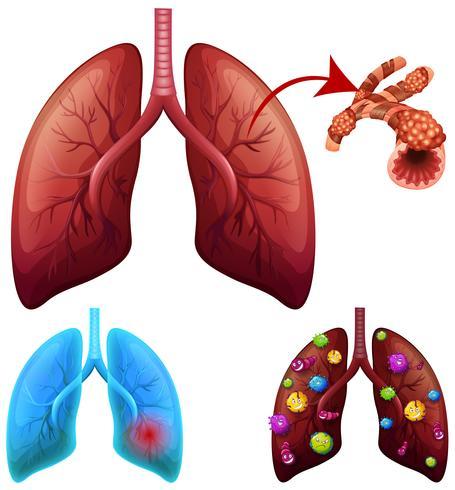Eine Reihe von Lungenerkrankungen vektor
