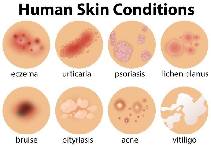 En uppsättning mänskliga hudförhållanden vektor