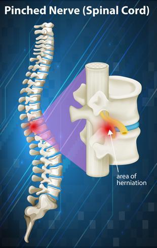 Diagramm des eingeklemmten Nervs am Rückenmark vektor