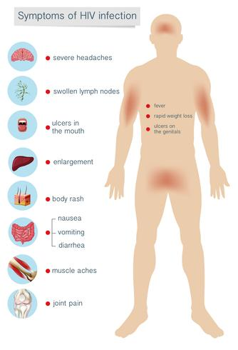 Anatomie des Menschen Symptome einer HIV-Infektion vektor