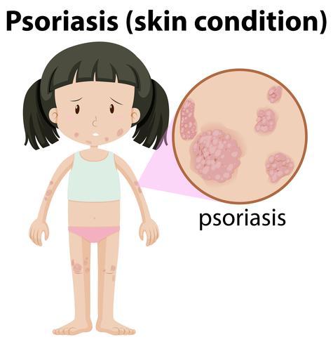 En flicka Havimg Psoriasis på huden vektor