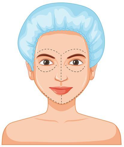 Lady ansiktshår botox vektor