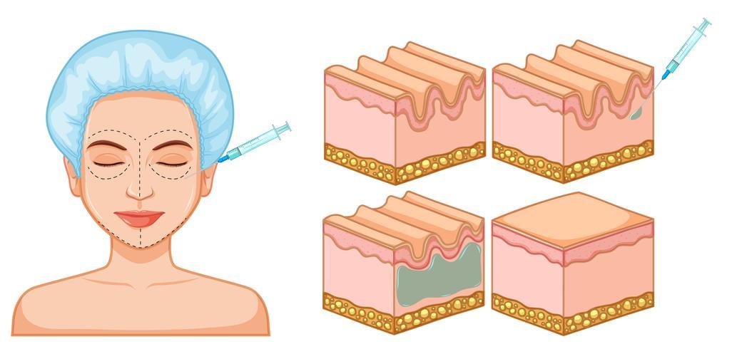 Lady ansikts- och hudbotox vektor