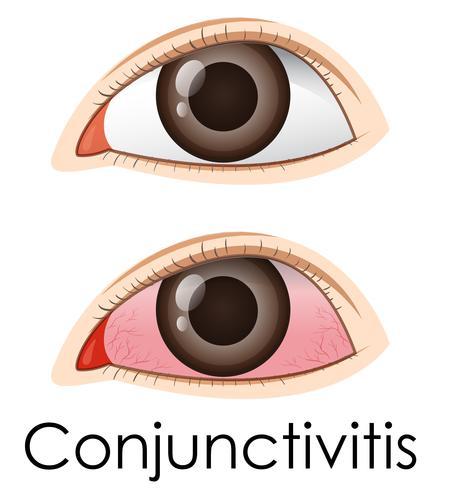 Konjunktivitis im menschlichen Auge vektor