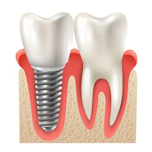 Tandimplantatanduppsättning närbildsmodell vektor