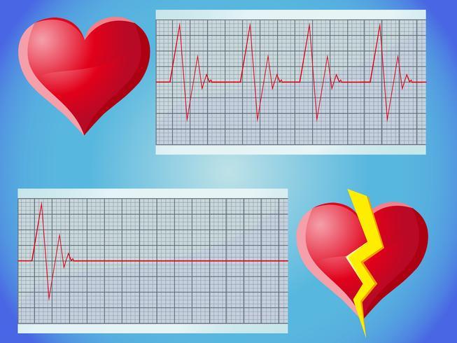 Puls der Herzfrequenz vektor
