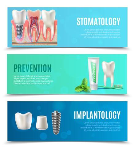Zahnimplantate 3 horizontale Banner gesetzt vektor