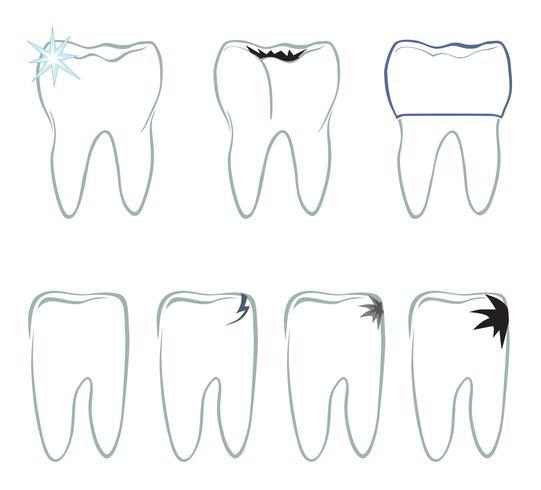 Tanduppsättning. Tänder vitt tecken. Dental medicinsk isolerad colection. vektor