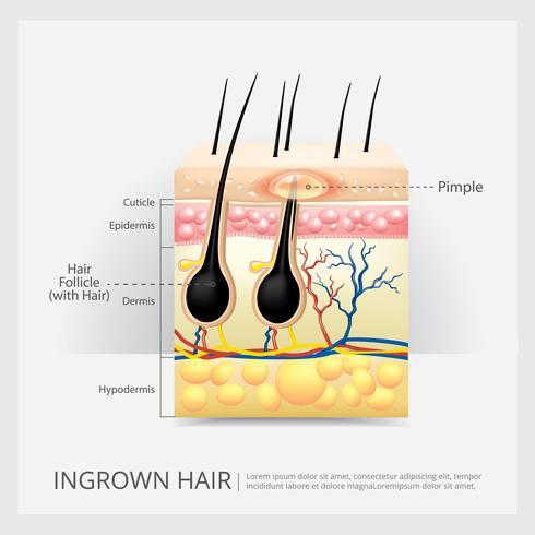ingrown hårstruktur vektor illustration