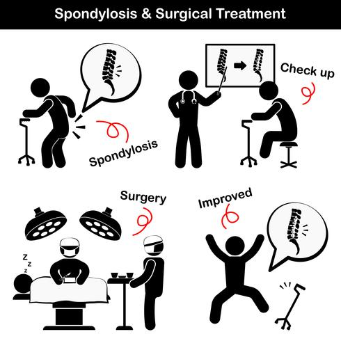 Spondylosis och Spondylolisthesis och kirurgisk behandling Pictogram (Gamla mannen lider av ryggsmärta), han kontrollerades och fungerade, ryggraden var intern fixerad av plåt och skruv) vektor